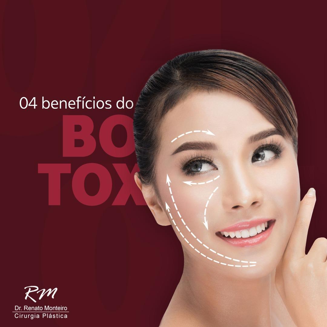 4 benefícios do Botox